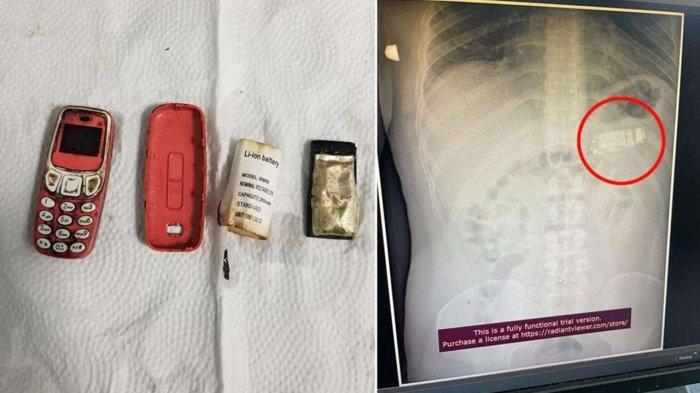 Pria Tak Sengaja Menelan Hp Nokia Jadul 3310, Dokter: Jika Dibiarkan Lama-lama Bisa Meledak