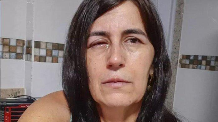 Regina Amorim, seorang wanita di Brasil yang harus dilarikan ke rumah sakit setelah matanya ditetesi lem super kuat oleh pacarnya