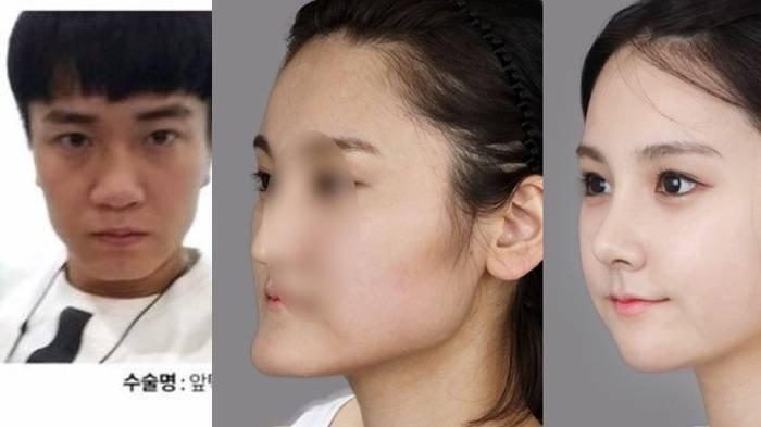 POPULER Wajah Asli Sederet Orang Korea Sebelum Operasi Plastik, Kini Tampil Sempurna & Manglingi!