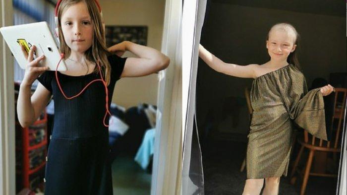 EFEK Pandemi Covid-19, Gadis Ini Kehilangan Bulu Mata dan Rambut Nyaris Botak, Alami Gangguan Ini