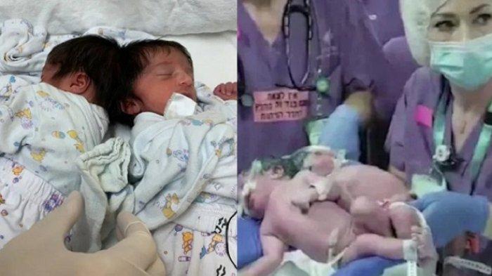 VIRAL Transformasi Bayi Kembar Siam Dempet Kepala, Kini Berhasil Dipisahkan, Foto Terbaru Buat Haru
