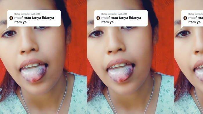 TikTok / @ ivonriada Viral gadis miliki lidah hitam, sulit ucap huruf R dan S.