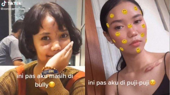 VIRAL Transformasi Gadis Dibully Ada Bekas Luka, Kini Berubah & Dipuji, Ini Fakta Pilu di Baliknya