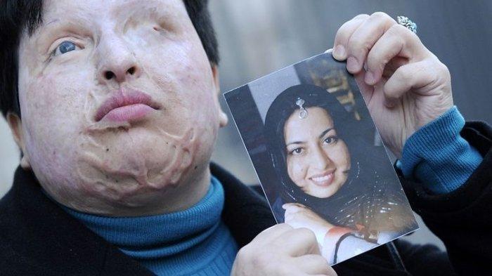 Mirip Kasus Novel Baswedan, Wanita Iran Disiram Air Keras, Pilih Maafkan Pelaku Harusnya Dihukum Ini