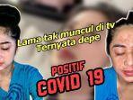 Dewi Perssik Sempat Terkena Covid-19: Terpapar Bersama 8 Anggota Keluarga & Beri Pesan Ini ke Publik