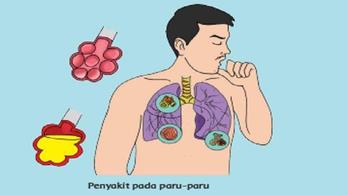Mengapa Penderita Bronkitis Mengalami Sesak Napas?