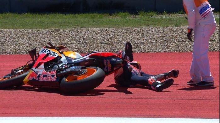 Marc Marquez Bisa Jadi Absen 2 Seri Balap MotoGP 2020, Bagian Lengan Dihantam Ban Motor
