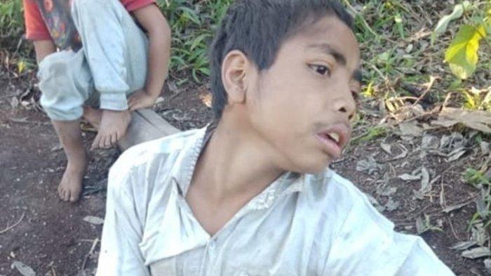 KISAH RISTAN - Remaja 16 Tahun yang Lumpuh sejak Lahir dan Terbaring Bermimpi Kursi Roda
