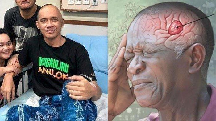 Penyebab & Gejala Glioblastoma, Penyakit yang Menyerang Otak Kiri Agung Hercules