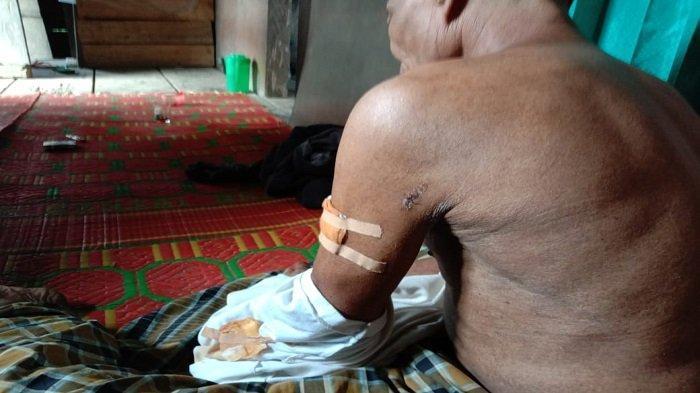 Warga Solok Selatan Terluka Cakaran Beruang Madu, BKSDA : Bahu Korban Terluka 8 Jahitan