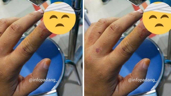 VIRAL Curhatan Pengendara Motor Dilempar Batu oleh Orang Gila di Padang, Tulang Telunjuk Pecah
