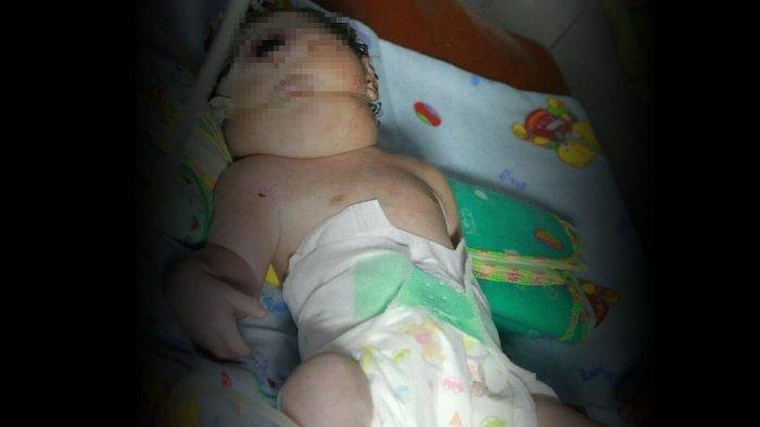 Geger Bayi Perempuan Bermata Satu dan Tanpa Hidung Lahir di Mandailing Natal. Orangtua Syok