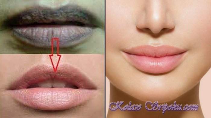 Bibir Kamu Hitam Kaya Aspal Begini Cara Mencerahkanya Cukup Dengan 7 Bahan Murah Ini Sriwijaya Post