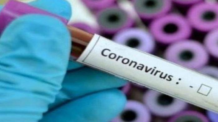 Kena Efek Virus Corona, Pengusaha Hotel di Sumsel Rumahkan Karyawan, Okupansi Turun Hingga 75 Persen