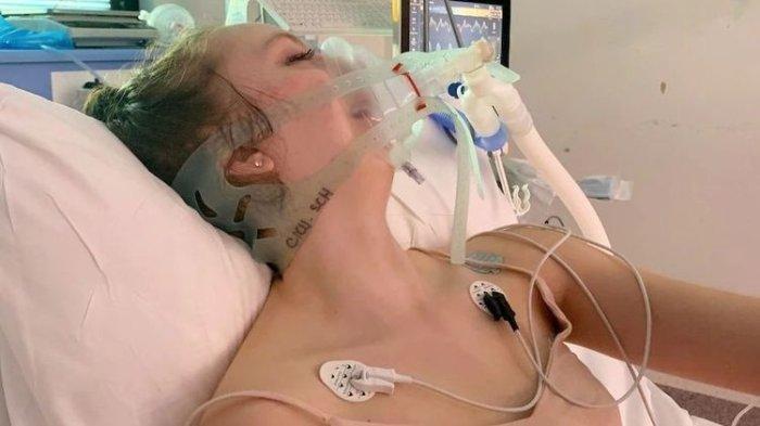 Kisah Gadis Muda 15 Tahun, Paru-parunya Rusak Karena Vaping, Kini tak Bisa Nafas Tanpa Ventilator