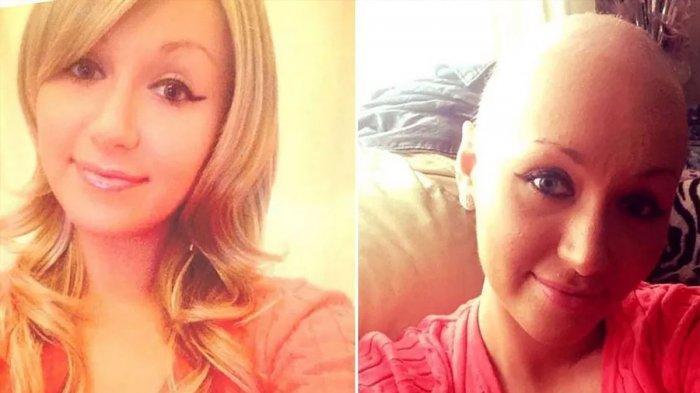 Wanita Cantik Meninggal Dunia Karena Kanker Serviks, 15 Kali Minta Dites Pap Smear Selalu Ditolak