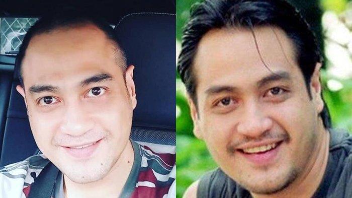 Profil Ferry Irawan, Aktor yang Sakit Keras akibat Pecah Pembuluh Darah, Pernah Dekat Cici Paramida