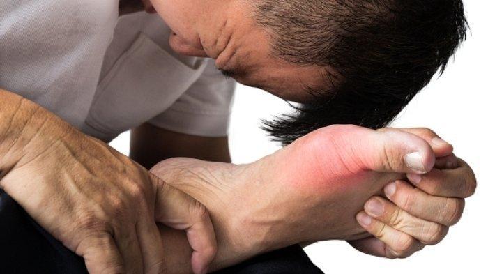 Rekomendasi Obat Pengurang Rasa Sakit Asam Urat Serta Efek Sampingnya, Nomor 6 Jangan Asal Konsumsi