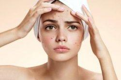 Cuma Mitos, Jerawat Bisa Lenyap Karena Gunakan Masker Sperma