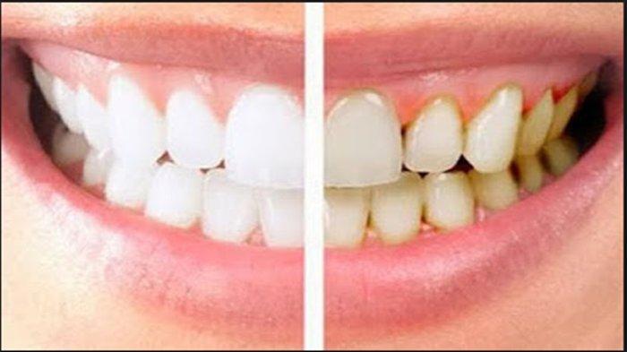 Cara Rontokkan Karang Gigi dalam Waktu 5 Menit, Pakai Bahan Alami Ini,  Bisa Coba Sendiri di Rumah