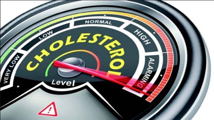 Inilah Cara Mudah Cegah Kolesterol Tinggi Selama Pandemi Covid-19