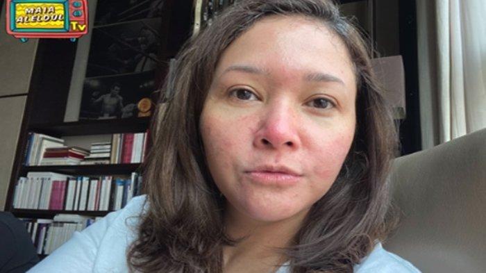 Wajah Maia Estianty Dipenuhi Bercak Merah, Istri Irwan Musrry Idap Penyakit Langka: Susah Sembuh