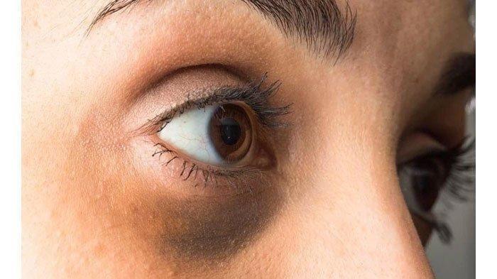 Tips Merawat Mata Terbebas dari Lingkar Mata Hitam hingga Perawatan Mata Bengkak