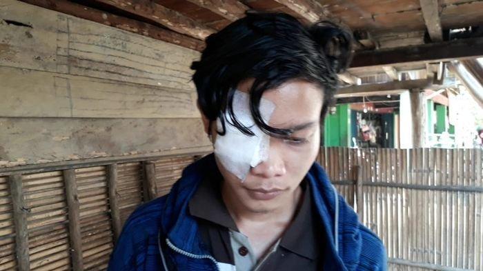 Pagi Buta, Ketua RW Ngamuk Seret Warganya Kemudian Dipukuli Hingga Babak Belur, Pasal Sepele