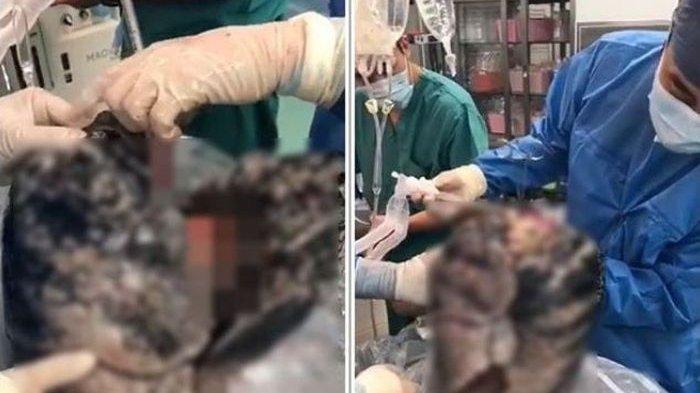 Kondisi jantung seorang perokok, setelah dokter mebedahnya.