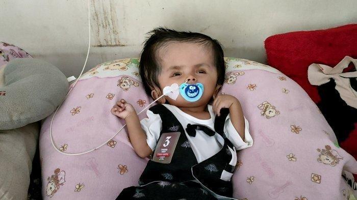 Orangtua Bayi Penderita Hidrosefalus Berharap Mukjizat Tuhan Karena Tak Mampu Menebus Obat