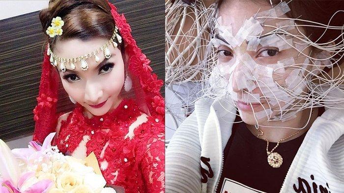 Roro Fitria Jalani Perawatan Muka Penuh Kabel, Netizen: Mau Cantik Ribet Banget!
