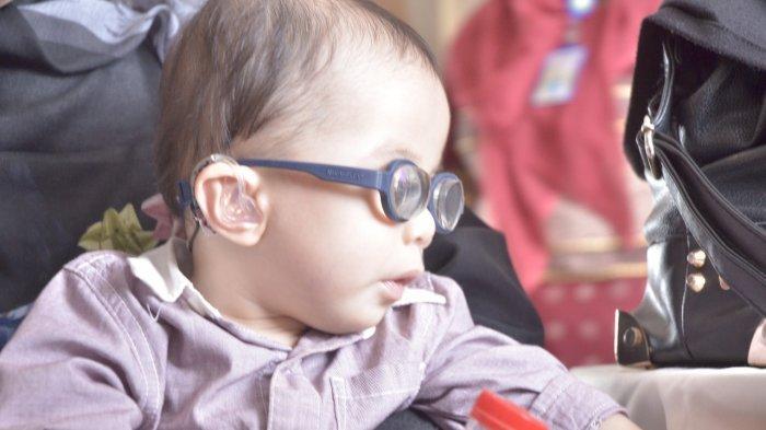 Bayi Usia 10 Bulan di Palembang  Kenakan Kacamata Plus 20 Akibat  Penyakit Ini
