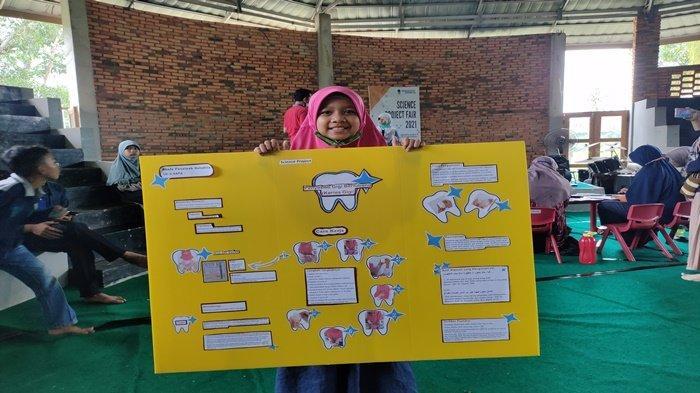 Usianya Baru 10 Tahun, Siswi Kelas 4 Sekolah Alam Palembang Ini Temukan Cara Ukur Keasaman Gigi