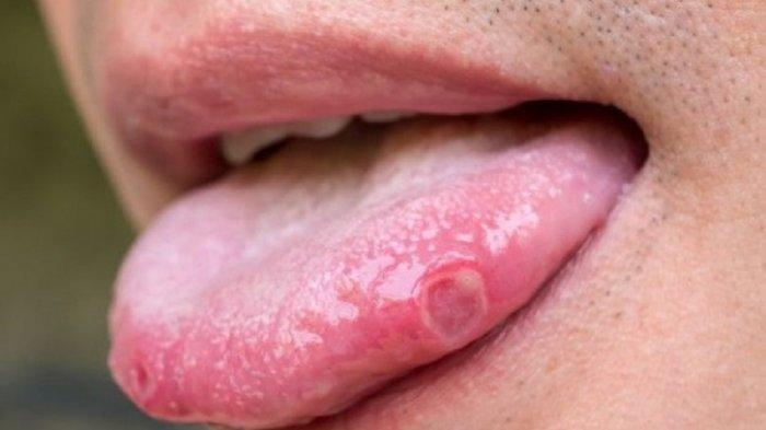 HATI-hati Jika Lidah Sakit Seperti Sariawan: Gejala Baru Tubuh Tertular Virus Covid  Varian Baru