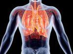 hipertensi-paru1_20180924_172044.jpg