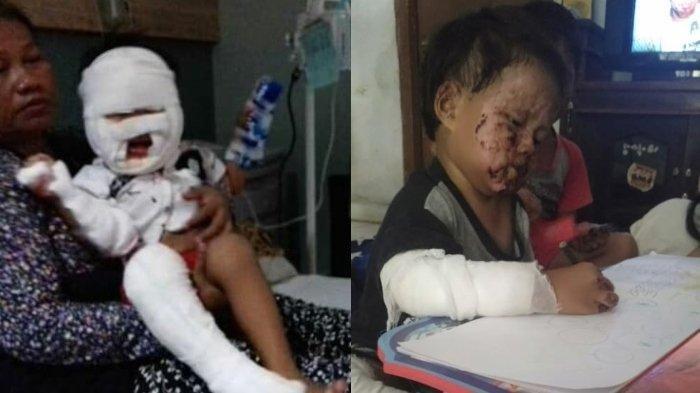 Kisah Pilu! Bocah 3 Tahun Terbakar saat Dekati Sumber Api Sambil Membawa Botol Bekas Hand Sinitizer