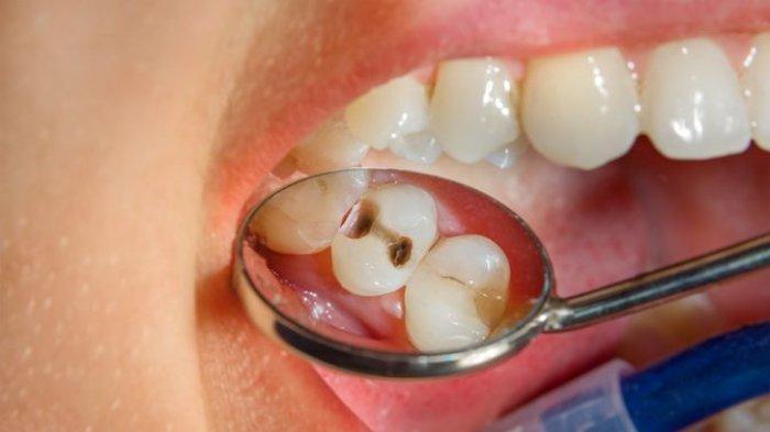 Kenapa Bisa Gigi Berlubang Sebabkan Kematian? Risiko Penyakit Jantung, Stroke Hingga Kanker