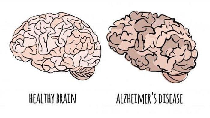 Apa Itu Alzheimer? Pengertian, Gejala Hingga Perbedaan dengan Demensia