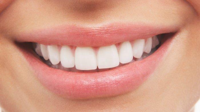 ILUSTRASI - Gigi yang sehat harus tetap dijaga walupun sedang berpuasa Ramadhan