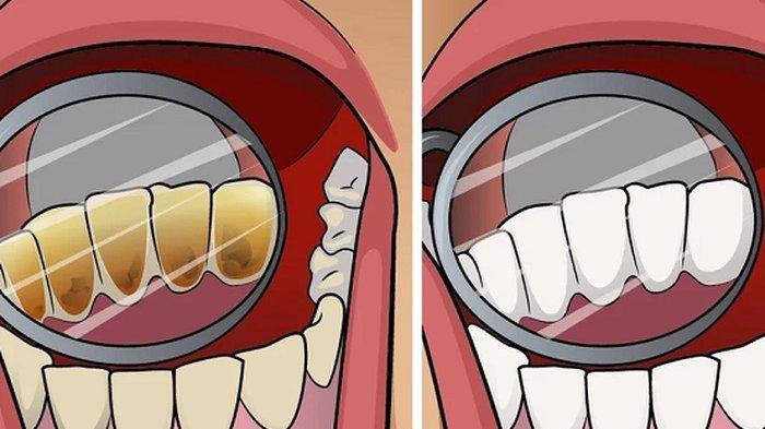 6 BAHAYA yang akan Terjadi Bila Karang Gigi Dibiarkan, Bisa Buat Gusi Meradang!