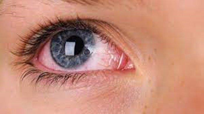 Ilustrasi mata pasien yang menderita katarak