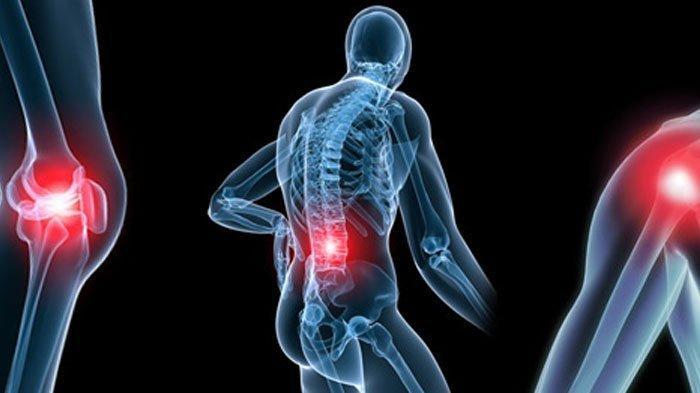 Mengenal Penyakit Rematik yang Bisa Diatasi dengan Ketumbar, Ketahui Manfaat dan Cara Membuatnya