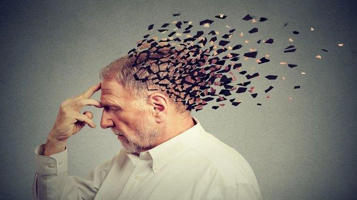Ilustrasi orang yang alami Alzheimer