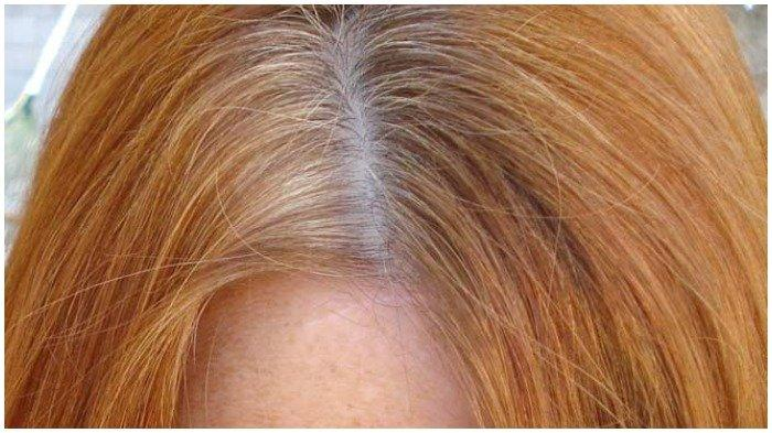 Tiga Bahan Berikut Ternyata Efektif Kurangi Rambut Rontok, Ada Lidah Buaya hingga Minyak Zaitun
