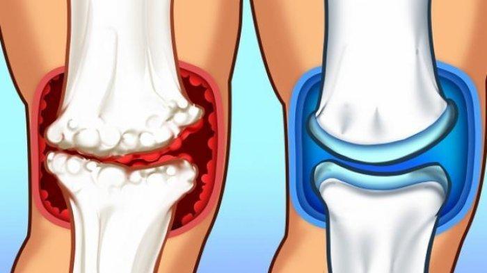 Benarkah Ketumbar Bisa Cegah Masalah Persendian & Tulang? Simak Hasil Penelitian Ahli Berikut