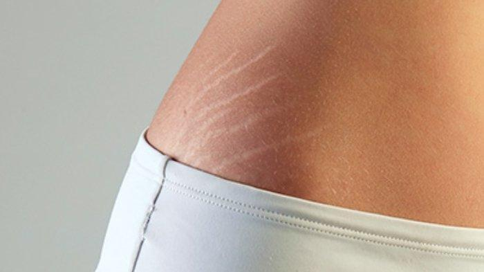 Tips Kesehatan: 4 Bahan Alami Ini Mampu Hilangkan Stretch Marks di Perut hingga Paha, Begini Caranya