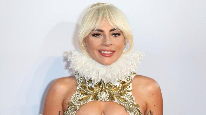 Pengasuh Ditembak, 2 Anjing Lady Gaga yang Diculik Sudah Ditemukan, Bagaimana Imbalan Rp 7,1 Miliar?