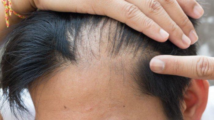 Cara Cek Kesehatan Kulit Kepala, Kenali 5 Penyebab Gatal: Ternyata Bukan Cuma karena Ketombe