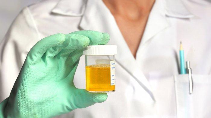 Benarkah Warna Urine Menandakan Kondisi Kesehatan Kita? Simak Penjelasannya