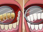 ilustrasi-karang-gigi.jpg